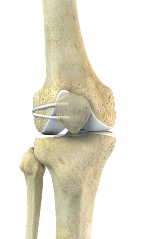 partial knee replacement in Mount Pleasant